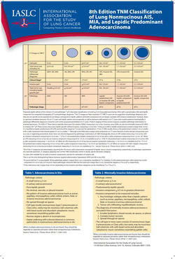 Poster 8th Edition TNM Classification of Lung Nonmucinous AIS MIA and Lepidic Predominant Adenocarcinoma Poster