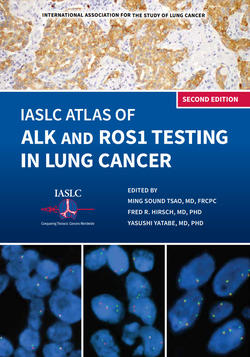 The IASLC Atlas of ALK and ROS1 Testing in Lung Cancer